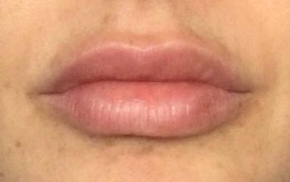 Lábios - Dr. Eduardo Matos